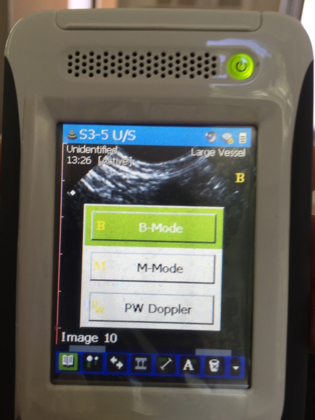 3 scanning modes : B, M and PWD. No Colour Doppler!