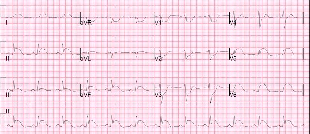 australian resuscitation council guidelines for ventricular fibrillation